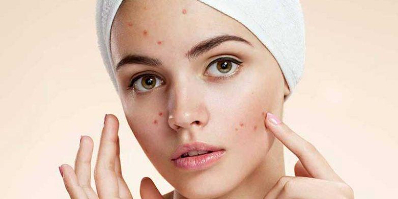 استفاده از آلوئه ورا برای درمان جوش صورت آلوئه ورا ضمن اینکه با کاهش التهاب پوست احساسی عالی به شما میدهد، آزردگی و قرمزی جوش را نیز از بین برده و پوست تان را درخشان و صاف میکند