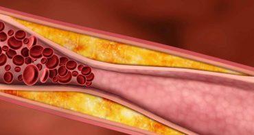 چربی خون چیست و چه علائمی در بدن دارد ؟