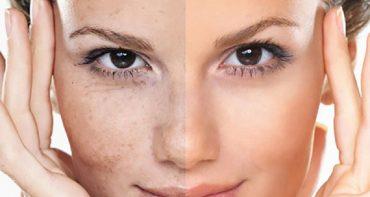 جوانسازی پوست صورت