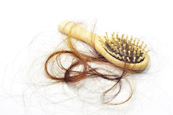 9 عامل مهم بر ریزش مو را بشناسید