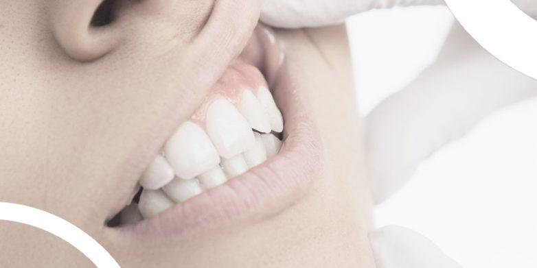 چرا باید درمان لبخند لثه ای را جدی گرفت؟