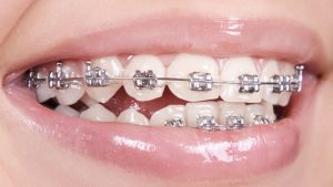 درمان لبخند لثه ای